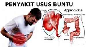 penyakit usus buntu